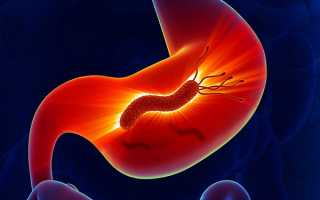 Возбудители и лечение инфекционного гастрита