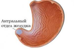 Диагностика и лечение антрум гастрита