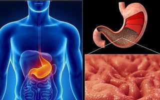 Возможные последствия несвоевременного лечения гастрита