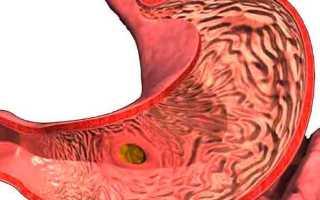 Что это такое Антральный гастрит и как его лечить
