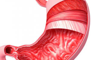 Диагностика гиперацидного гастрита