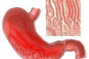 Серьезная патология желудка Катаральный гастрит