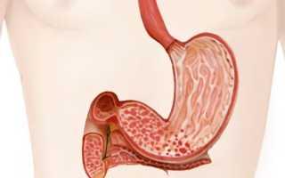 Причины, диагностика и лечение эрозивного гастродуоденита