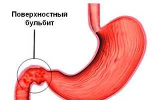 Диагностика и лечение Поверхностного бульбита