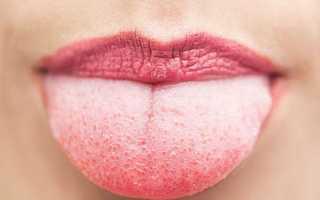 Серый налет на языке — один из симптомов гастрита