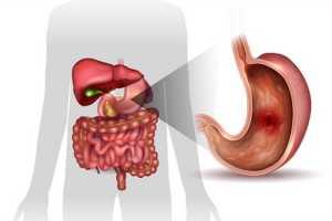 Как лечить эритематозный экссудативный гастрит с поражением антрума?