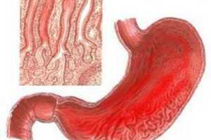 Какие симптомы у гипертрофического гастрита и как его вылечить?