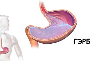 Гастроэзофагеальная рефлюксная болезнь (изжога) ГЭРБ
