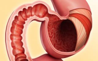 Описание заболевания очаговый бульбит и подробное лечение