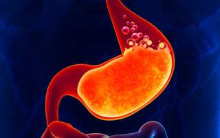 Причины гастрита с повышенной кислотностью, методы лечения