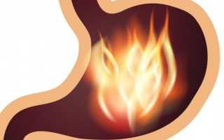 Лечение Эритематозной гастропатии — суть патологии, причины и диагностика