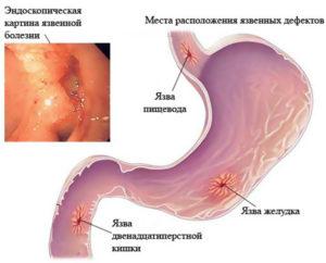 Язвы желудка