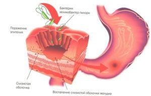 Поверхностный катаральный бульбит