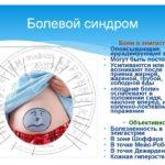 Болевой синдром в эпигастрии высокой интенсивности