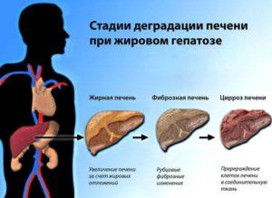 Гепатоз возникает при нарушении функционирования печени