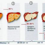 Острый гепатит