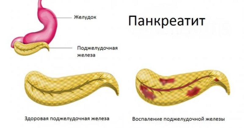 Как выглядит панкреатит или воспаление поджелудочной железы