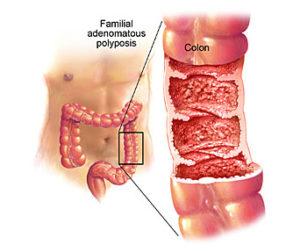 Полиэндокринный аденоматоз