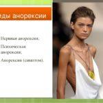Проявления анорексии