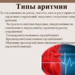 Проявления аритмии