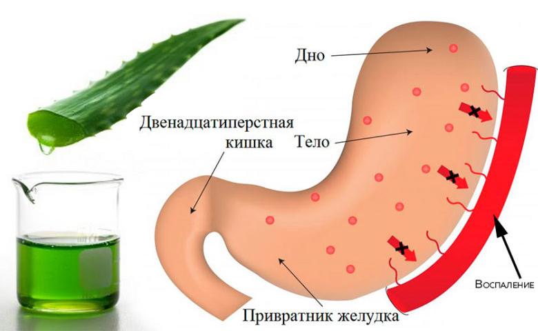 Воспалитеьные процесы в желудке