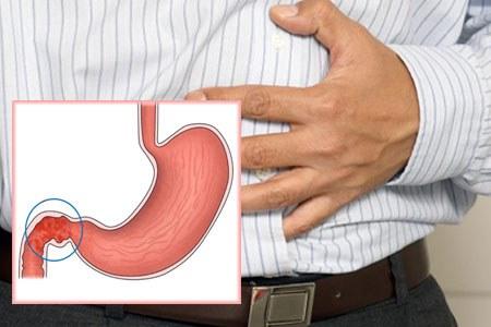 Помогает справиться с дискомфортными ощущениями в желудке
