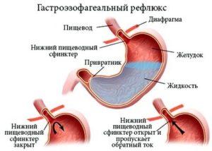 Как диагностировать заболевание
