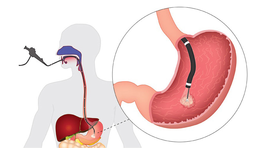 Метод эзофагогастродуоденоскопии