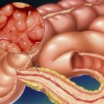 Поражения кишечника