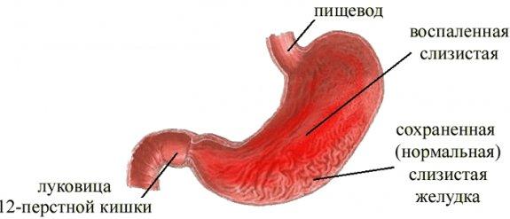 Особенности хронического гастрита
