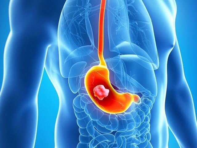Гипертрофия желудка