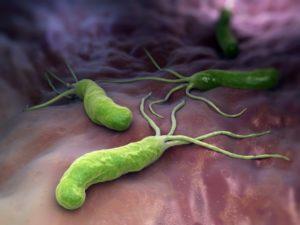 Хеликобактер пилори - одна из основных причин возникновения хронического гастрита