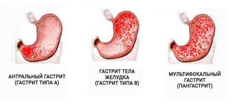 Признаки и лечение атрофического гиперпластического гастрита