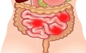 Дискинезия кишечника