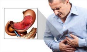Боль в области желудка при больших перерывах между приемами пищи также может являться симптомом язвенного гастрита