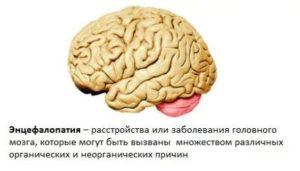 Передозировка препаратом может вызвать энцефалопатию