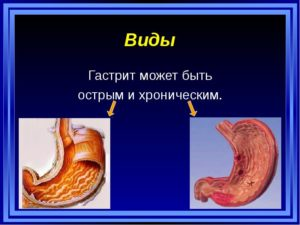 Любой из двух видов гастрита препятствует полноценной переработке пищи и не дает ей усваиваться стенками желудка