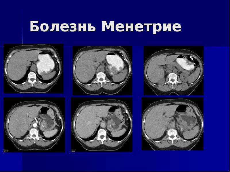Виды хронического гастрита, симптомы и лечение