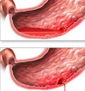 Желудочное кровотечение представляет серьезную угрозу не только здоровью, но и жизни больного, поэтому нуждается в неотложной медицинской помощи