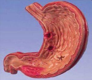 Хронический гастрит имеет 3 подтипа